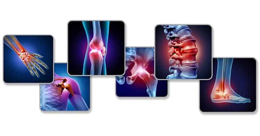 Konsultieren Sie Ihren Arzt, wenn Sie wiederkehrende Gelenkschmerzen haben