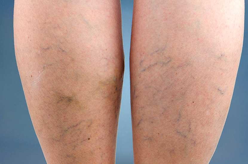 """Krampfadern entstehen, wenn das Blut in den Beinen """"stagniert""""."""