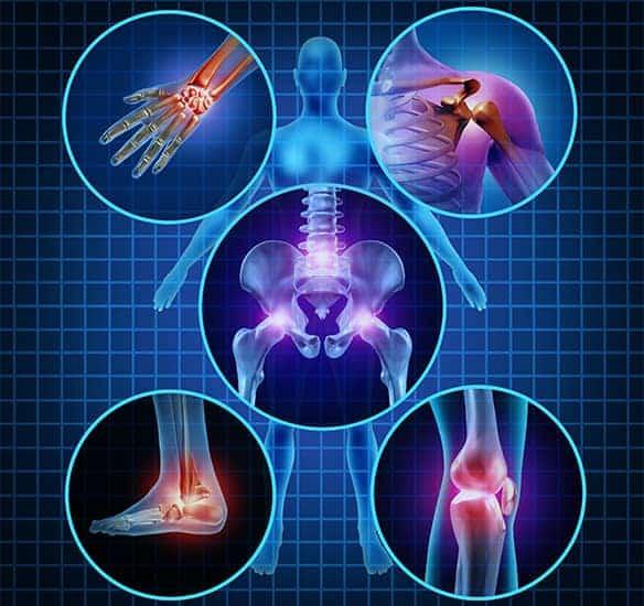 Die meisten Meinungen von Artroser sind positiv