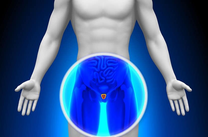 Prostatahyperplasie ist eine häufige Erkrankung bei Männern